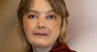 Morta dopo 11 anni la prima donna che subì un trapianto del viso